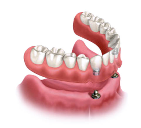 Removable implant-supported dentures