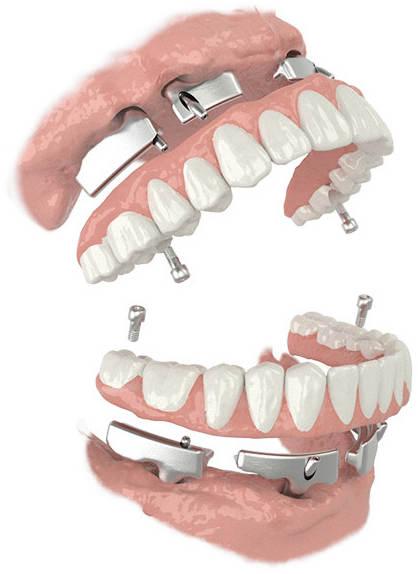 dentca-4