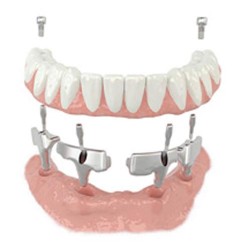 dentca4