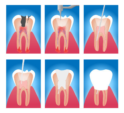 how root canal therapy works